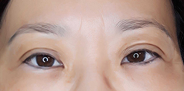Before and After Photos Brow Ink Permanent Make Up Powder Brows Before